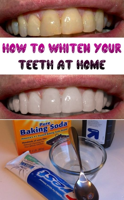 Easy Home Remedy for Teeth Whitening at Home.